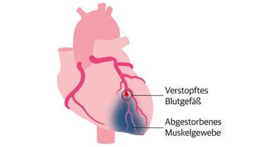 Bei einem Herzinfarkt ist ein Blutgefäß verstopft.