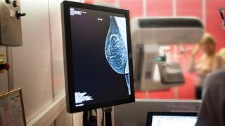 3D Mammographie am Bildschirm