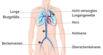 Das Bild zeigt: In einer Vene ist ein Blutgerinnsel (1). Das Blutgerinnsel löst sich. Das Blutgerinnsel fließt mit dem Blutstrom (2). Das Blutgerinnsel bleibt in der Lunge stecken (3)
