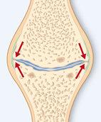 Der Knochen wird stärker belastet. Deshalb wächst er an manchen Stellen. Das zeigen die roten Pfeile