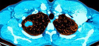 Lungenkrebsscreening