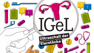 Illustration: IGEL Ultraschall Eierstöcke