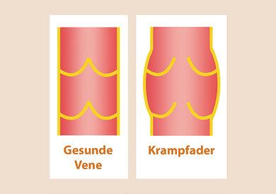 Krampfadern sind Venen. Das Bild zeigt links: eine gesunde Vene. Das Bild zeigt rechts: eine Krampfader. Sie ist geweitet.