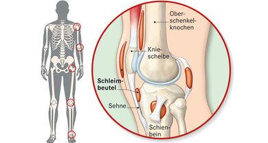 Das Bild zeigt links: Schleimbeutel sind in verschiedenen Gelenken. Das Bild zeigt rechts: Das Knie-Gelenk von der Seite. Dort sind mehrere Schleimbeutel.