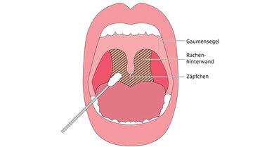 Beim Abstrich durch den Mund muss der Arzt das Stäbchen für den PCR-Test bis hinter das Gaumenzäpfchen schieben