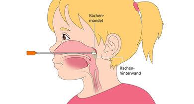 Beim Abstrich durch die Nase für den PCR-Test schiebt der Arzt das Stäbchen bis zur hinteren Rachenwand