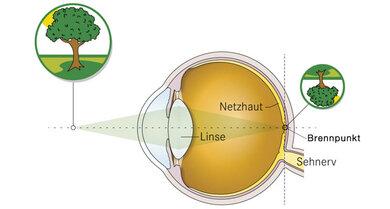 Beim Sehen entsteht auf der Netzhaut ein scharfes Bild. Auf der Netzhaut steht das Bild noch auf dem Kopf. Das Gehirn verarbeitet das Bild und dreht es richtig herum.