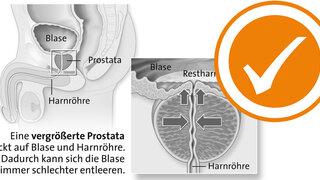 Prostata Restharnbildung bei Prostatavergrößerung