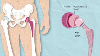 Infografik:  Hüftprothese (Detailbild)