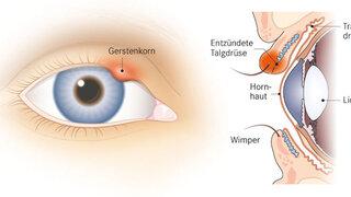 Gerstenkorn am Auge
