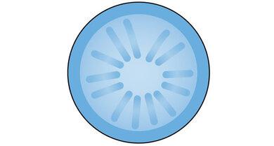 Grauer Star – Rindentrübung (schematisch): speichenartiges Muster, zum Teil bilden sich spaltenförmige Wassereinlagerungen