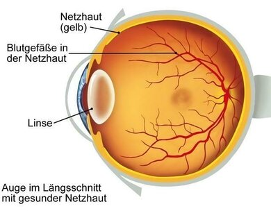 """""""Achillesfersen"""" am Augenhintergrund: Gefäße und Netzhaut"""