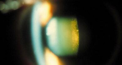 Grauer Star: Hintere Schalentrübung (feines schalenförmiges Trübungsmuster rechts, unter der Kapsel)