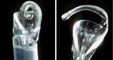 Kunstlinse im Injektor (Instrument zum Einlegen): Links: Linse noch gefaltet, rechts: Linse teils aufgefaltet (ein Bügel entfaltet sichtbar)