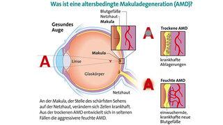 Makuladegeneration (Schematische Darstellung)