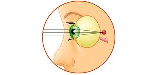 Augapfel mit Punkt des schärfsten Sehens