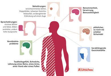 Mögliche Symptome eines Schlaganfalls auf einen Blick
