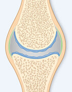 Beginnende Arthrose: Der Knorpel ist rauh, stellenweise abgerieben