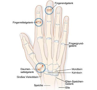 Polyarthrose der Finger: Diese Gelenke (Kreise) sind oft betroffen