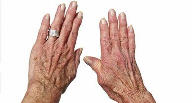 Verdickungen und Achsabweichungen der Finger können auf eine Fingerarthrose hinweisen
