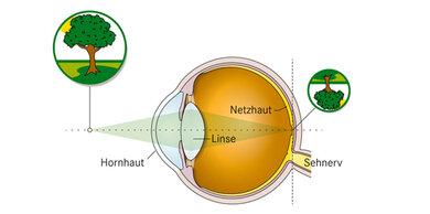 Beim normalsichtigen Auge entsteht auf der Netzhaut ein scharfes Bild...