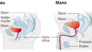 Grafik der Harnwege bei Mann und Frau