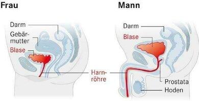 Naheliegend: Blasenentzündungen betreffen vor allem Frauen