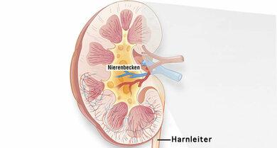 Anatomie der Niere: Hier liegt das Nierenbecken (im Bild gelb)