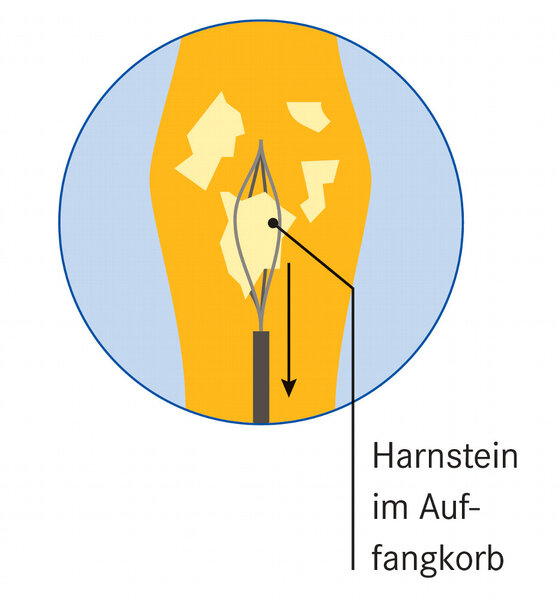 Infografik Harnstein im Auffangkorb