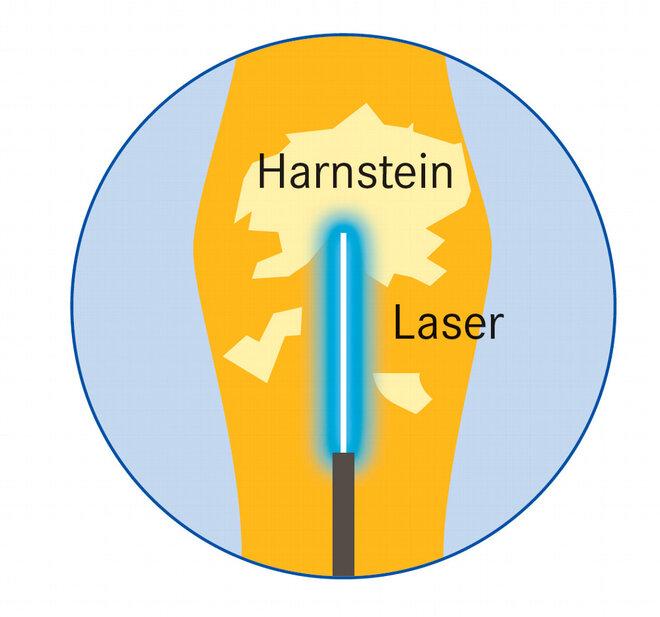 Infografik Harnstein Laser