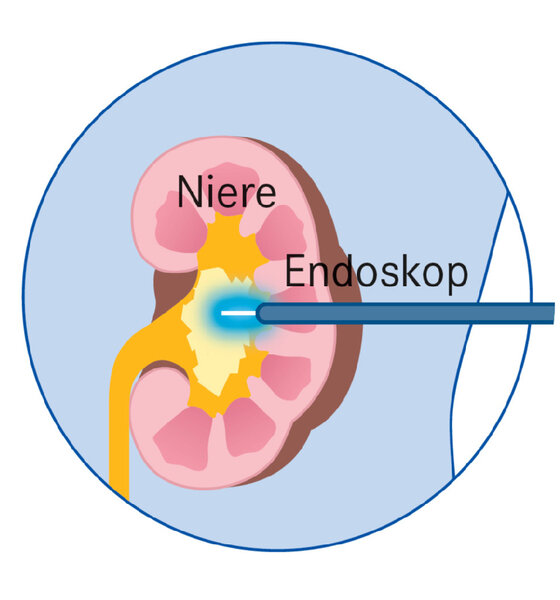 Infografik Niere Endoskop