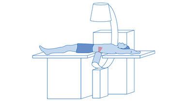 Behandlungsmethode ESWL: Stoßwellen zielen auf den Nierenstein und zerkleinern ihn