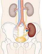 Bei der Transplantation erhält der Patient eine zusätzliche, funktionstüchtige Niere (im Bild dunkelbraun)