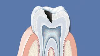 Kariesbefall, Zahnschmelz wird angegriffen
