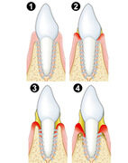 Parodontitis-Entstehung: Die Grafik zeigt, wie zunehmend das Zahnfleisch schwindet und die Zahnhälse freiliegen