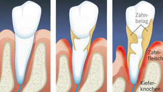 Illustration Parodontose