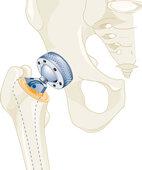 Ein Beispiel von vielen: Es gibt zahlreiche unterschiedliche Hüftgelenksprothesen