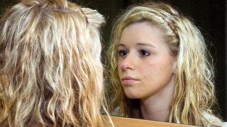 Junge Frau mit Akne
