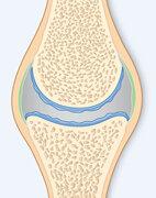 Stadium 2: Die Oberfläche des Knorpes ist uneben und fasert sich auf