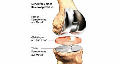 Knieprothese: Manchmal bleibt nichts, als das kranke Gelenk zu ersetzen