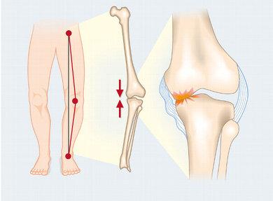 Fehlstellungen wie O-Beine können zu Fehlbelastungen im Kniegelenk führen und eine Arthrose begünstigen