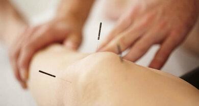 Akupunktur kann bei Gonarthrose helfen
