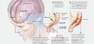 Kopfschmerzen Kurz Vor Geburt