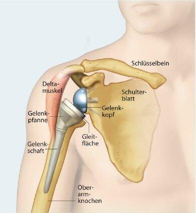 Am Ende aller Therapieoptionen steht manchmal ein künstliches Schultergelenk