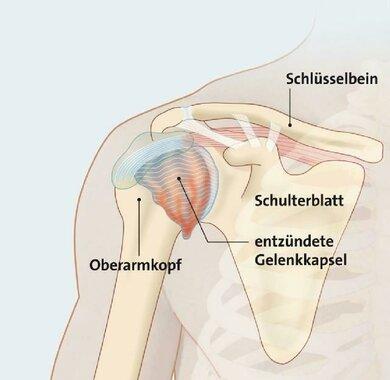 Entzündung der Schultergelenkkapsel, mögliche Folge: steife Schulter
