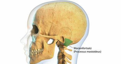 Eine Mittelohrentzündung kann sich auf den Warzenfortsatz (Processus mastoideus, hier grün markiert) ausbreiten
