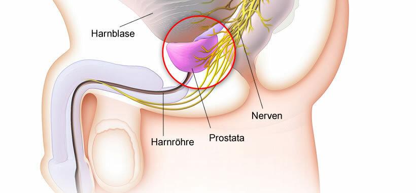 Prostatit statisztikák
