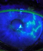 Gefährlich: Herpes am Auge (hellblau)