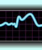 Typisches Infarktzeichen: Das EKG weist eine sogenannte ST-Hebung auf
