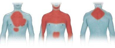 Rot: Hier können bei einem Infarkt Schmerzen auftreten